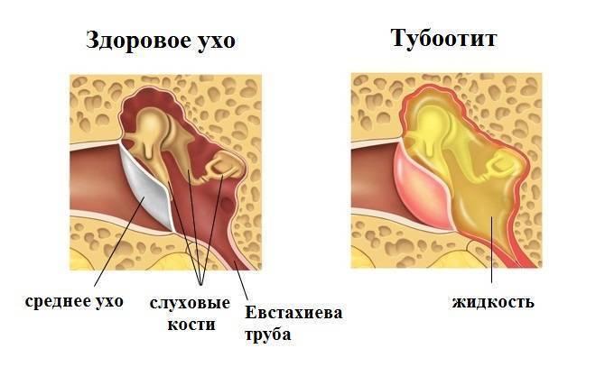Средний отит (воспаление среднего уха): симптомы и лечение – напоправку – напоправку