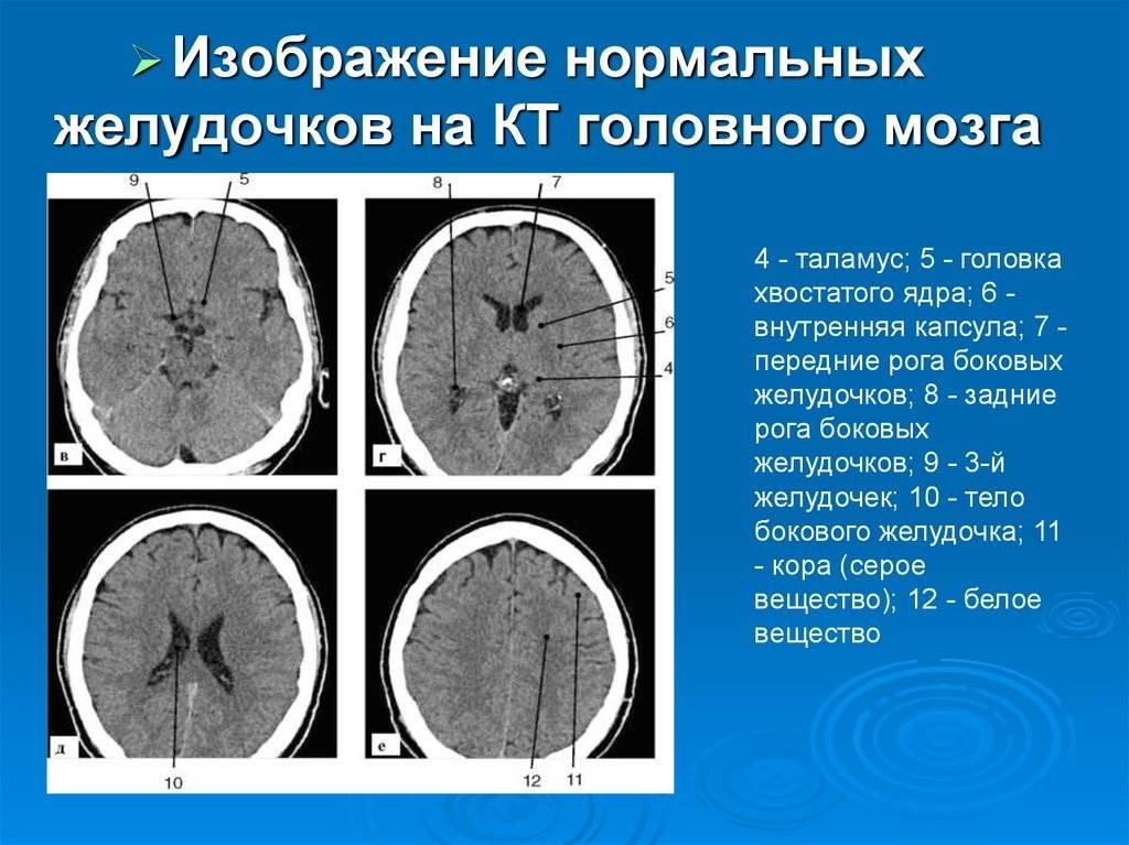 Кровоизлияние в желудочки головного мозга
