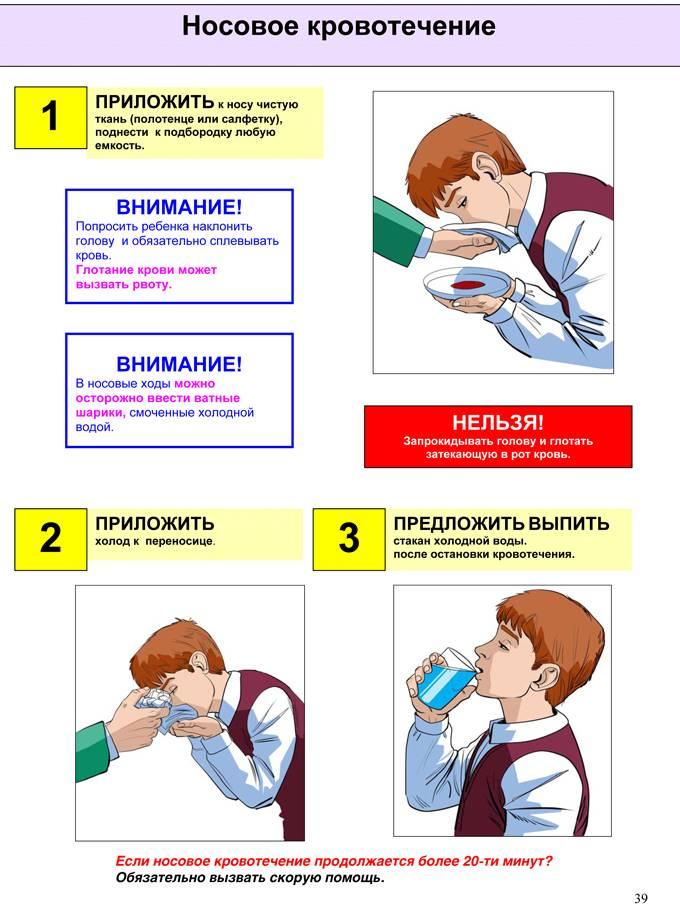 Носовое кровотечение – причины и лечение. носовые кровотечения у взрослых и детей.