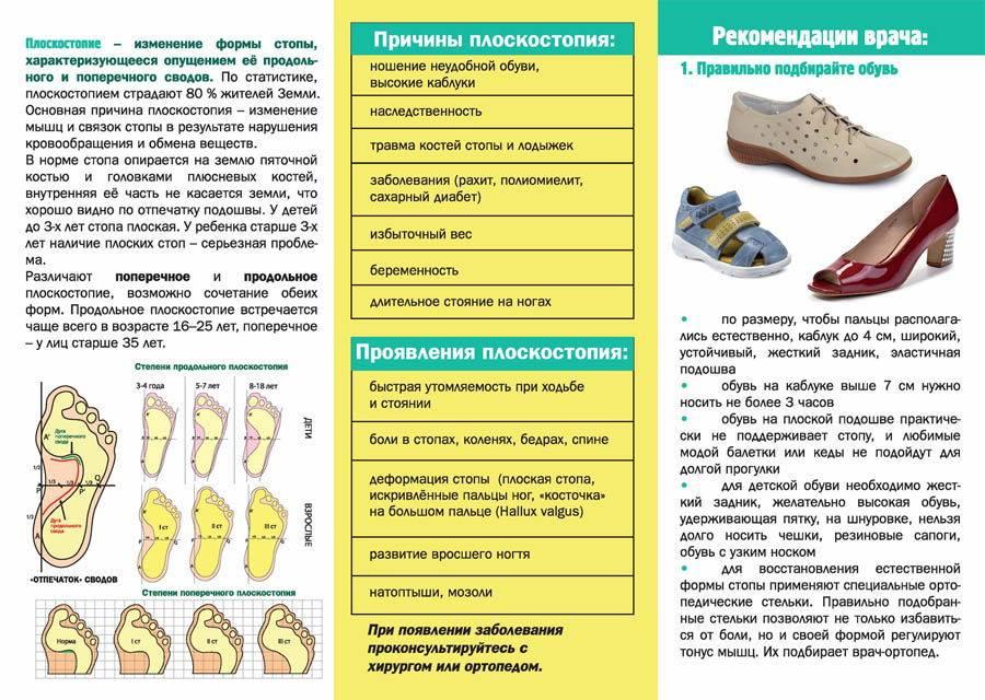 Как лечить плоскостопие - статьи клиники доктора глазкова в москве