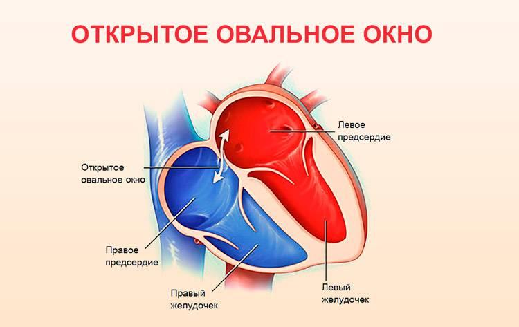 Дефект межжелудочковой перегородки - эндоваскулярное лечение в отделении института амосова