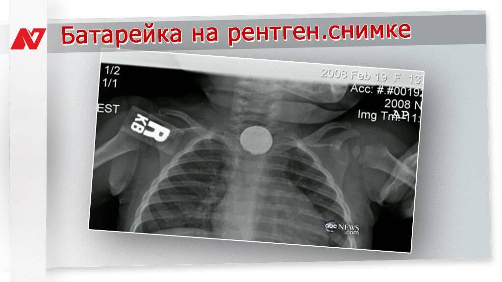 Ребёнок проглотил батарейку-таблетку - дайте мёд - medical insider