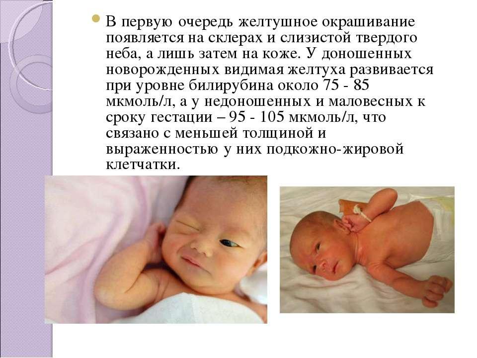 Желтушка у новорожденных