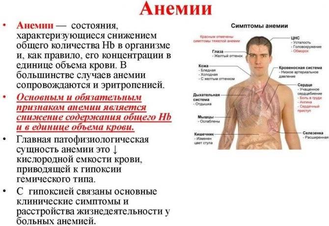 Анемия (малокровие) – причины, симптомы и лечение