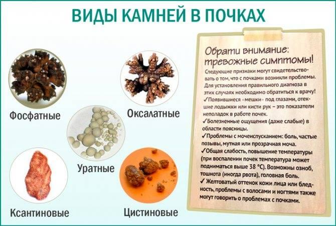 Отложение солей в суставах: артроз, кальциноз, подагра? - нолтрекс.