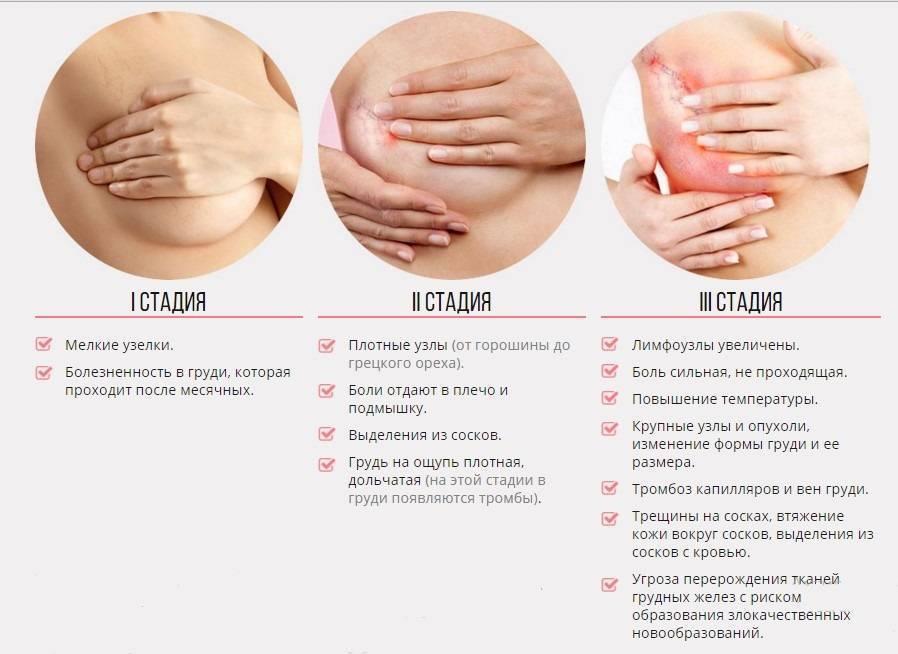 Гипоменорея или скудные месячные: причины, симптомы, лечение