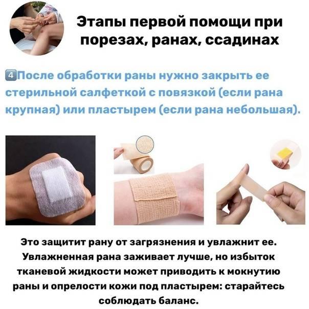 Что делать при травме ногтя?
