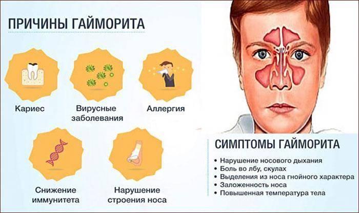 Симптомы гайморита у взрослых – эффективное медикаментозное лечение острого гайморита у лор-врача