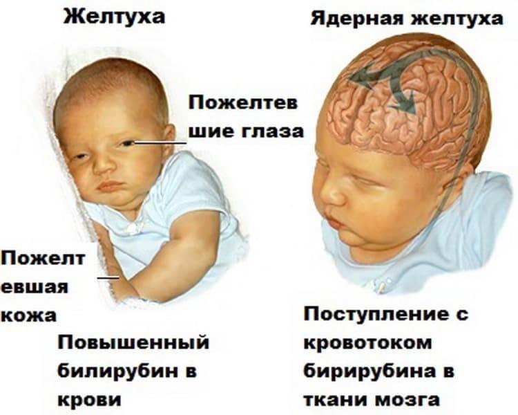 Ядерная желтуха новорожденных: причины, симптомы, последствия и лечение