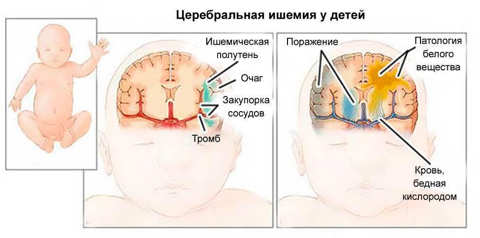 Боковые желудочки мозга ассиметричны - что это значит