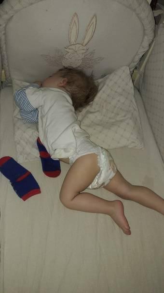 Детское апноэ сна
