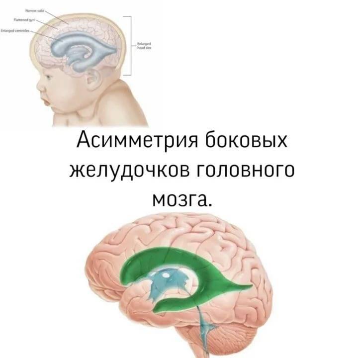 Гидроцефалия: причины, симптомы, диагностика и лечение