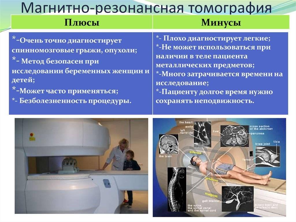 Вопросы и ответы специалистов - мрт головного мозга