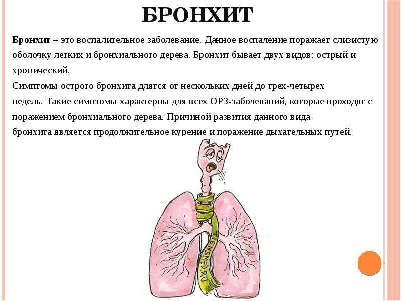 Аллергический бронхит
