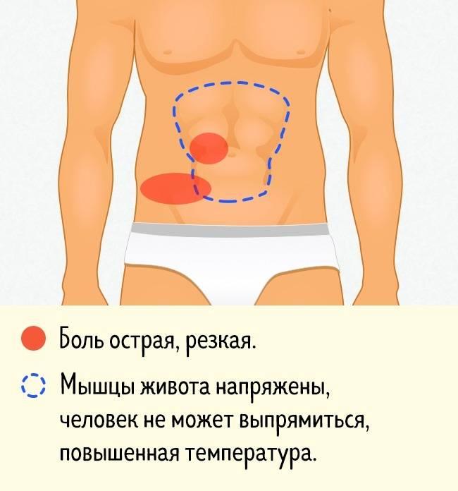 Боль вокруг пупка: причины и лечение   компетентно о здоровье на ilive