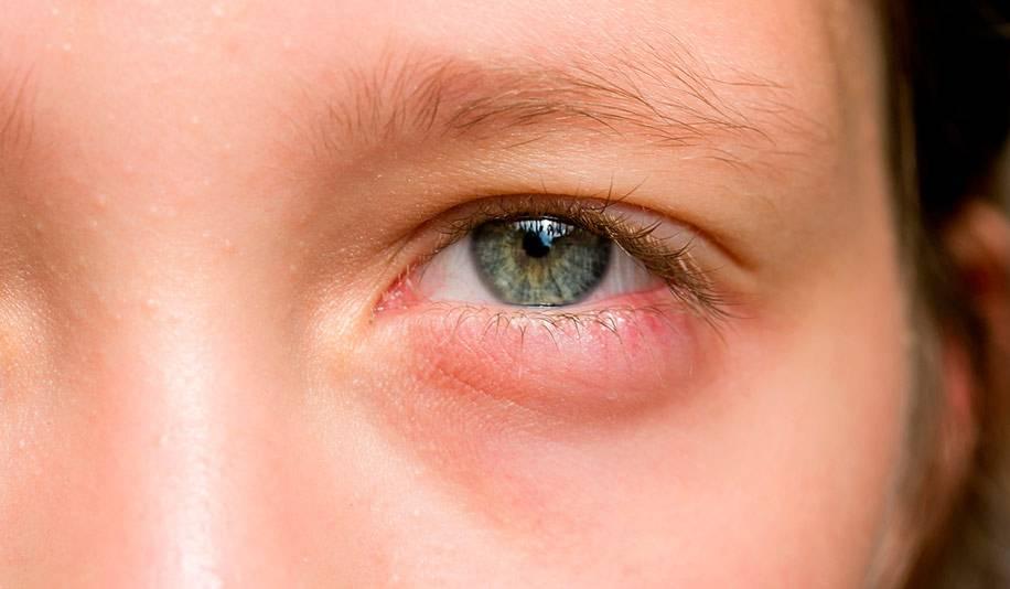 Воспалился глаз у ребенка