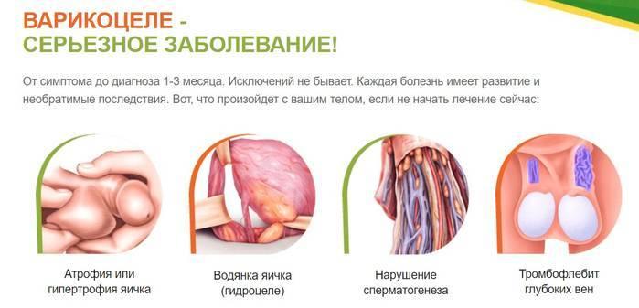 Варикоцеле: причины, лечение, профилактика, симптомы варикоцеле у взрослых, детей, уролог варикоцеле, степени, чем опасно