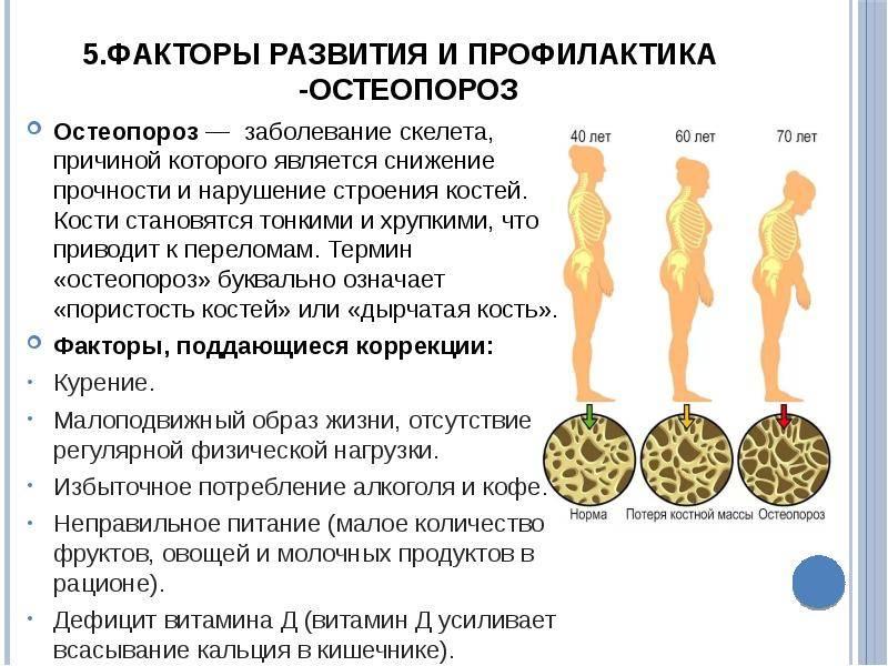 Обзор рекомендаций по лечению остеопороза | университетская клиника