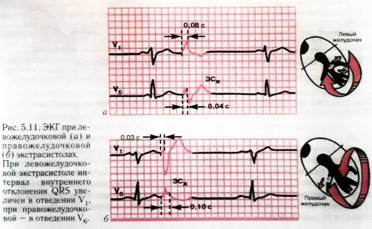 Расшифровка экг: наиболее важные показатели кардиограммы с примерами нарушений   университетская клиника