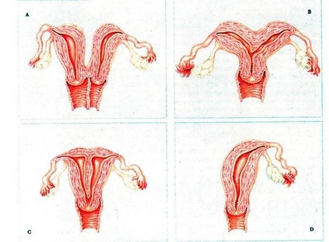 Субинволюция матки