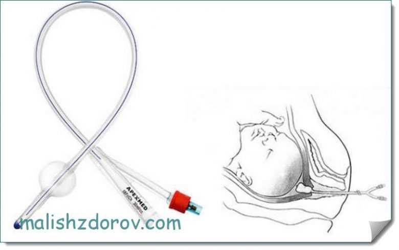 Как проводится стимуляция родов в роддоме: мифепристон, окситоцин, гели, катетер фолея