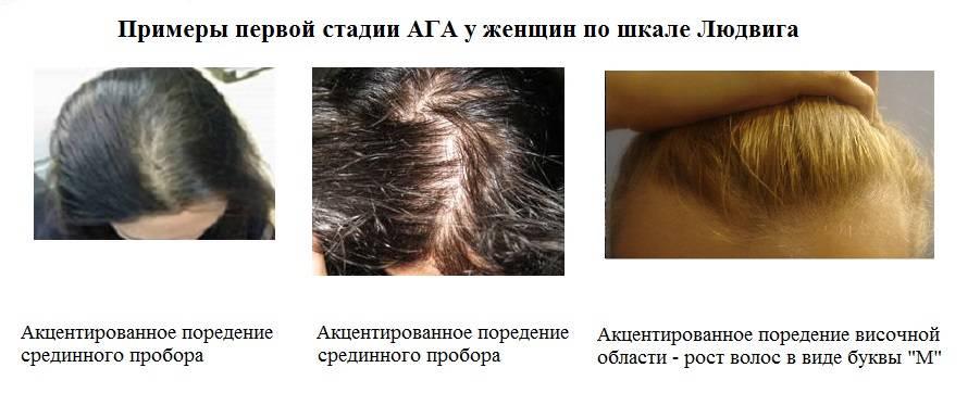 Что делать, если после родов сильно выпадают волосы?