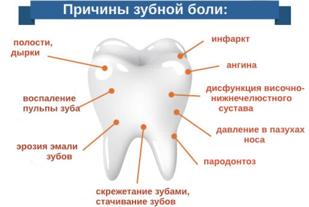 Экстренные способы облегчения зубной боли