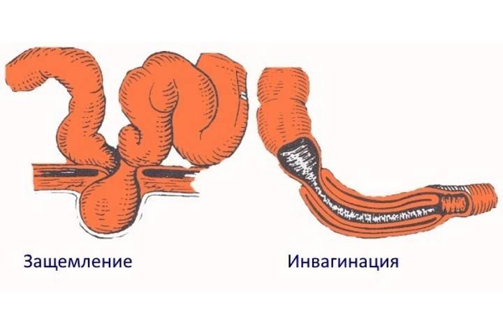 Симптоматика и лечение при врожденной непроходимости кишечника у новорожденных