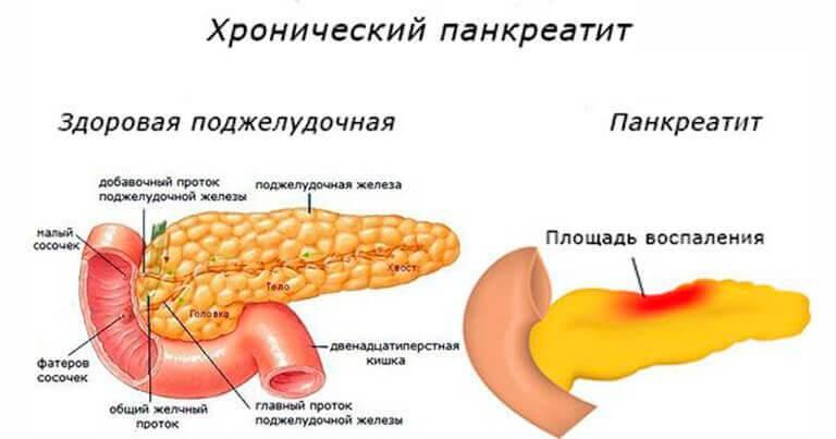 9 кожных заболеваний, связанных с воспалительными заболеваниями кишечника