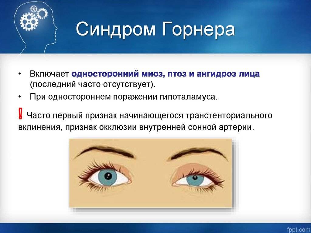 Анизокория - зрачки разного размера. симптомы, причины, лечение