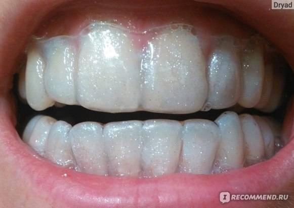 Фторирование зубов в москве - врачи и цены на обработку фторлаком и глубокое фторирование