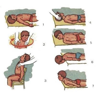 Кривошея у грудничков: причины и методы лечения (массаж\гимнастика)