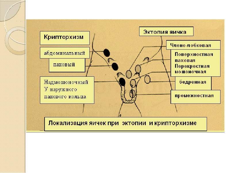 Тестикулярная боль (в яичках)