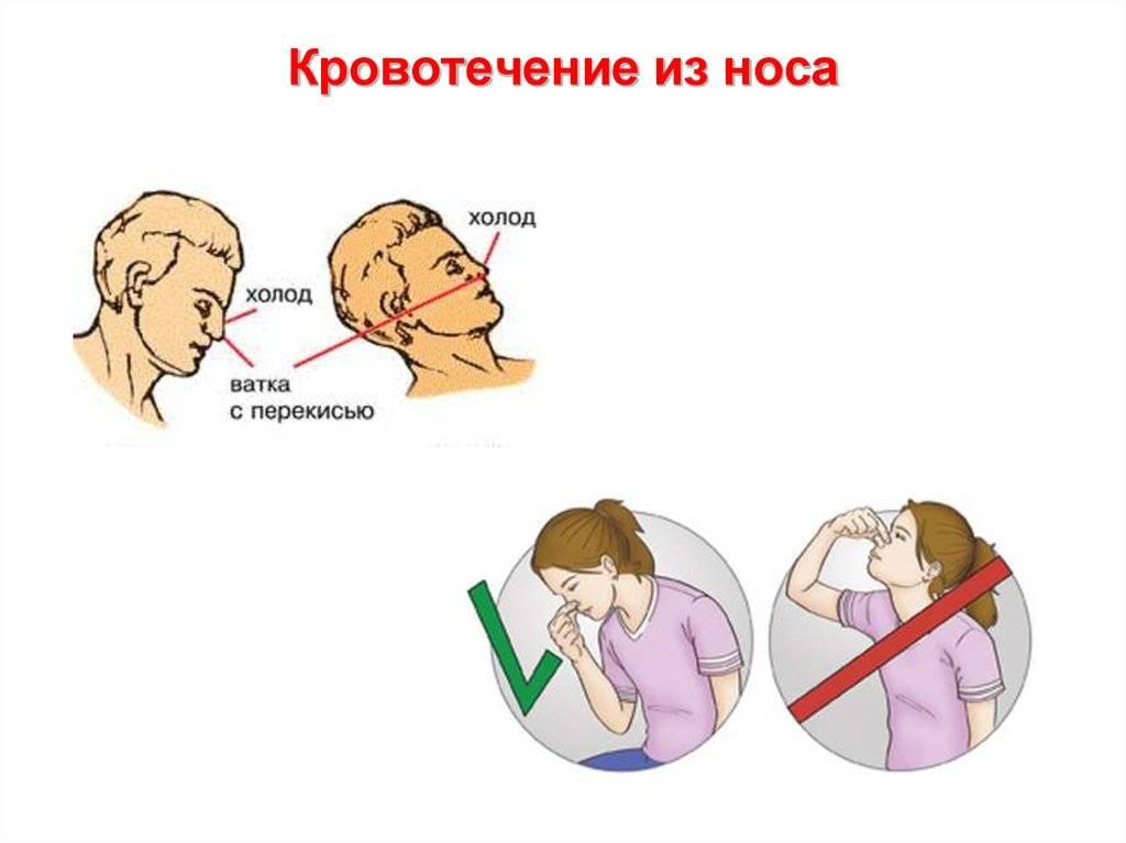 Кровотечения из язвы желудка и 12-перстной кишки | компетентно о здоровье на ilive