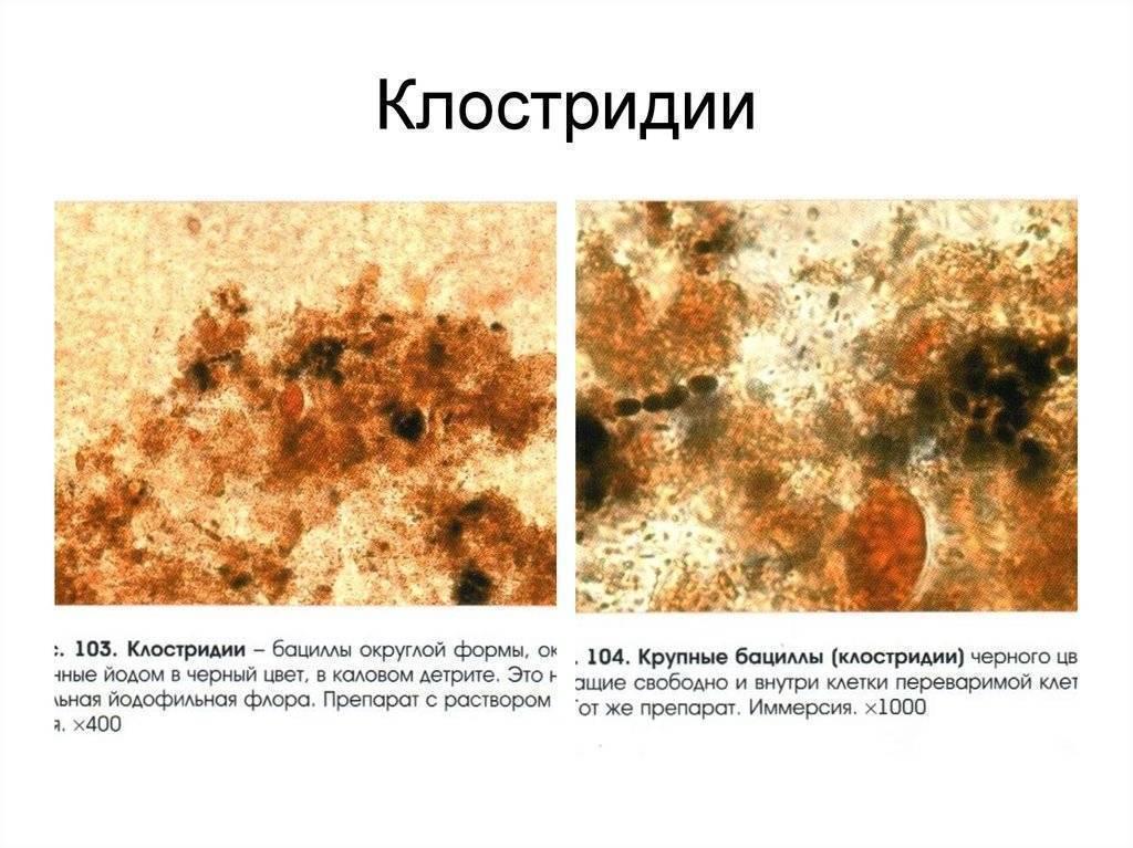 Развитие йодофильной патологической флоры: о чем говорят результаты анализов кала