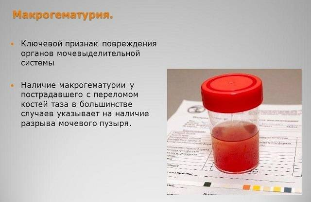 Кровь из уретры: причины, диагностика, лечение
