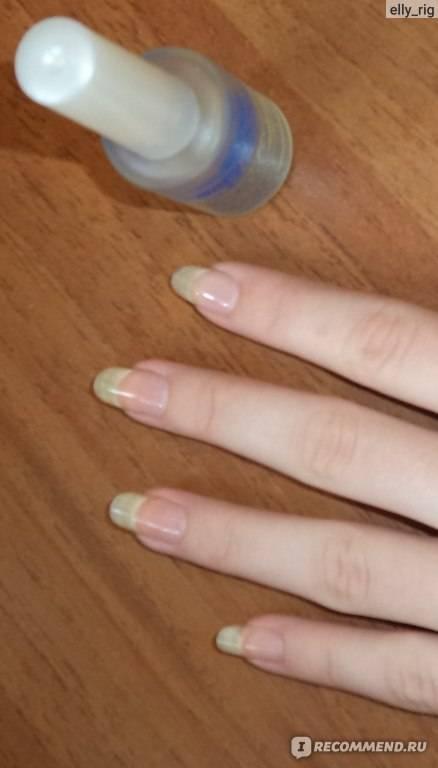 Можно ли беременным красить волосы и наращивать ногти. можно ли наращивать волосы во время беременности