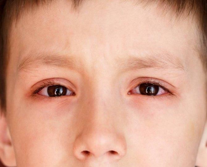 Какой бывает конъюнктивит при коронавирусе? отвечает врач-офтальмолог