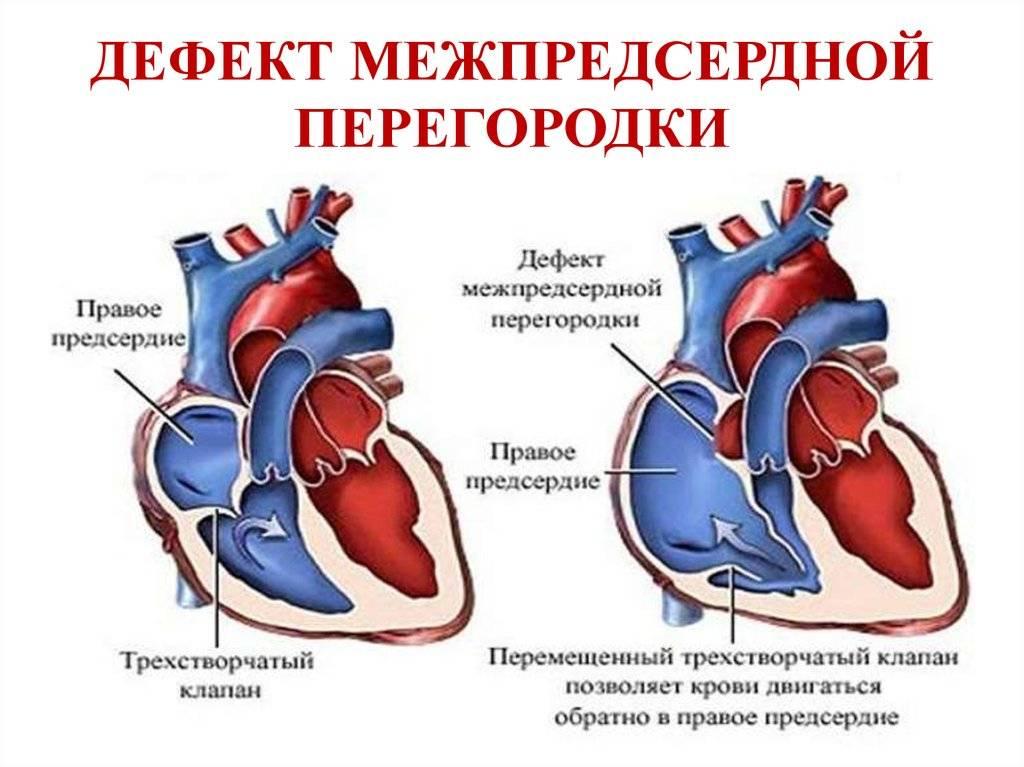Влияние спортивных нагрузок ⚽ на сердце | профмедлаб
