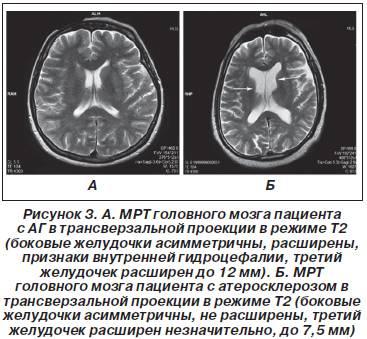 Строение и функции желудочков головного мозга