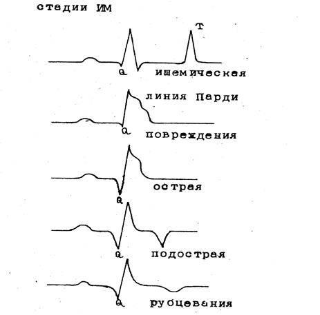 Расшифровка электрокардиограммы экг