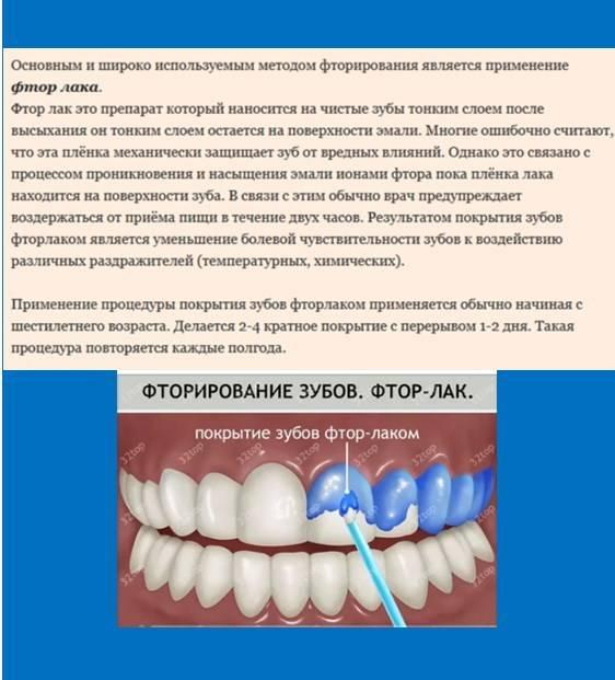 Фторлак для зубов - советы по укреплению эмали, фторируем зубы