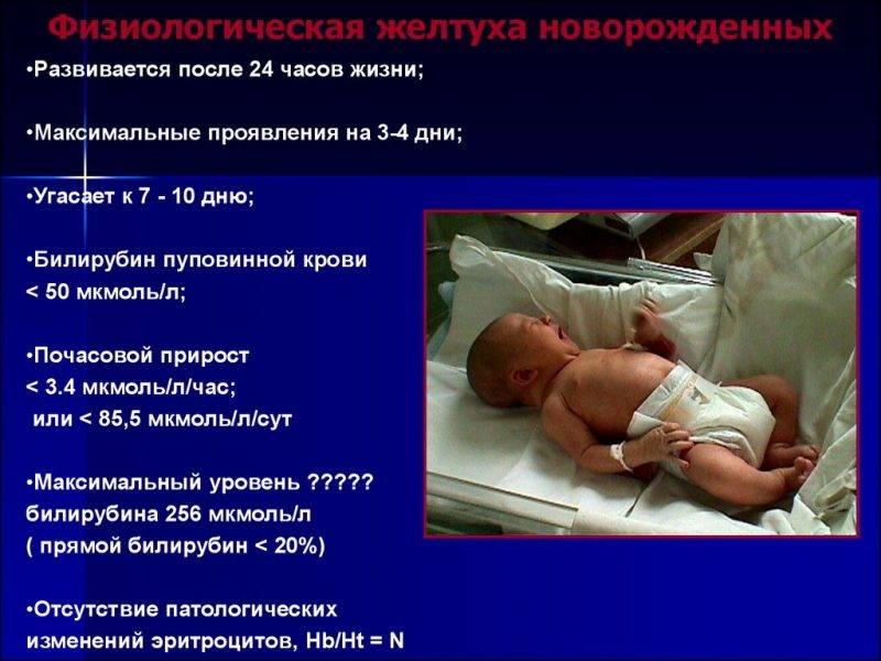 Как лечится желтуха у новорожденных в родильном доме?