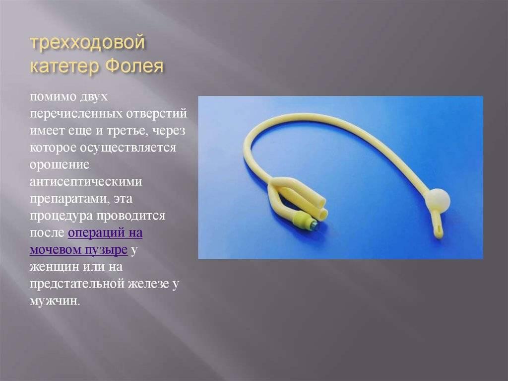 Катетер фолея для раскрытия шейки матки: показания, установка