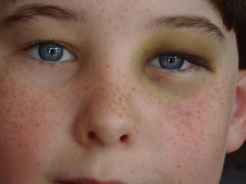 Отчего появляются круги под глазами и как от них избавиться