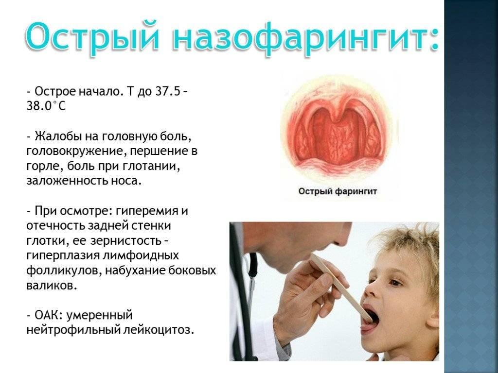 Фарингит причины и симптомы у детей и взрослых