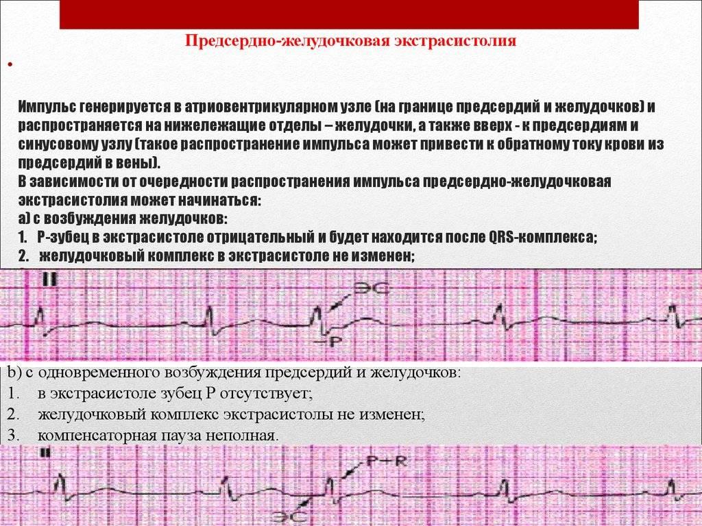 Суправентрикулярная экстрасистолия что это — всё о сердце