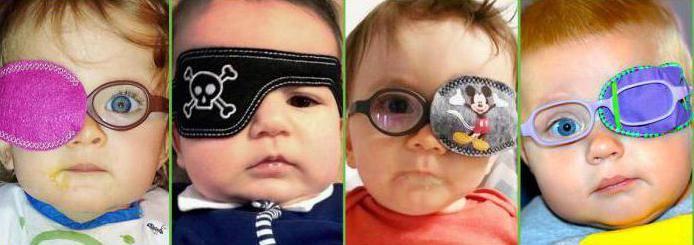 Амблиопия у детей: лечение, признаки, сипмтопы, степени болезни