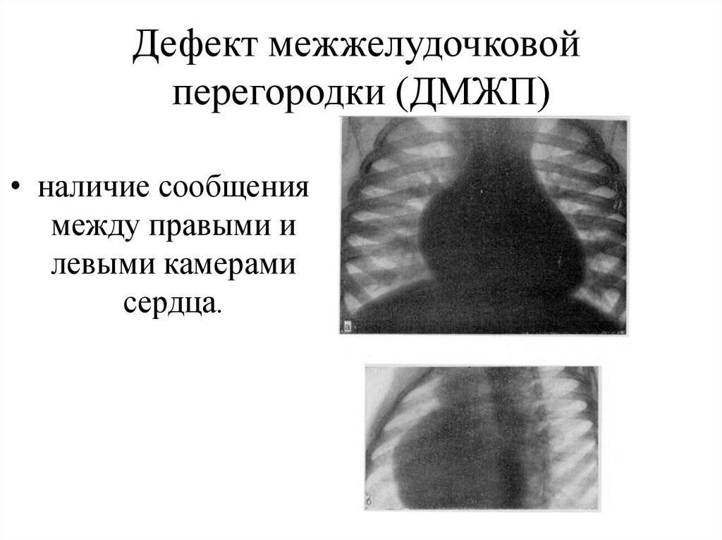 Дефект межжелудочковой перегородки: симптомы, лечение, причины — онлайн-диагностика