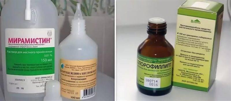 Лечение хронического тонзиллита дома, как лечить пробки в миндалинах в домашних условиях